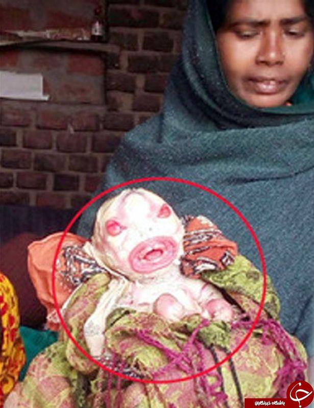 """ولد نوزاد نفرینشده که """"بیگانه فضایی"""" لقب گرفت+ (تصاویر 18+)"""