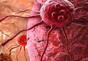 نکاتی که زنان باید در مورد شایعترین سرطان در مردان بدانند