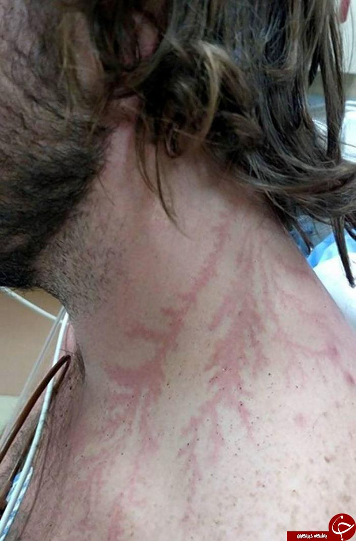 اصابت صاعقه با بدن انسان چه کار میکند؟ +تصاویر